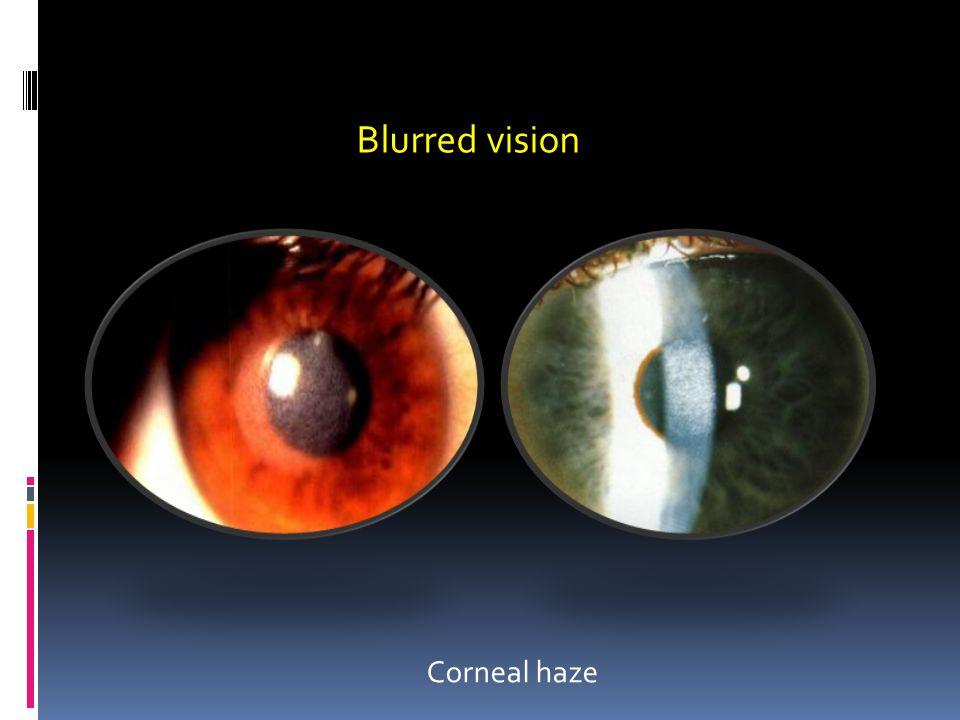 Blurred vision Corneal haze