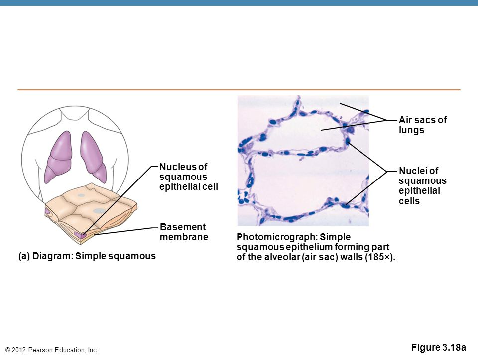 2012 pearson education inc figure 318a nucleus of squamous 2012 pearson education inc ccuart Images
