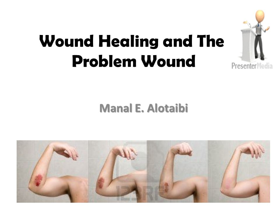 Wound Healing and The Problem Wound Manal E. Alotaibi
