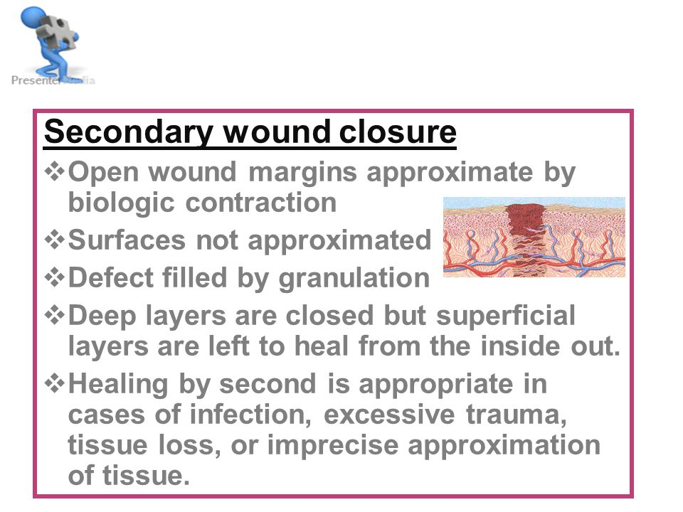 Secondary wound closure  Open wound margins approximate by biologic contraction  Surfaces not approximated  Defect filled by granulation  Deep layers are closed but superficial layers are left to heal from the inside out.
