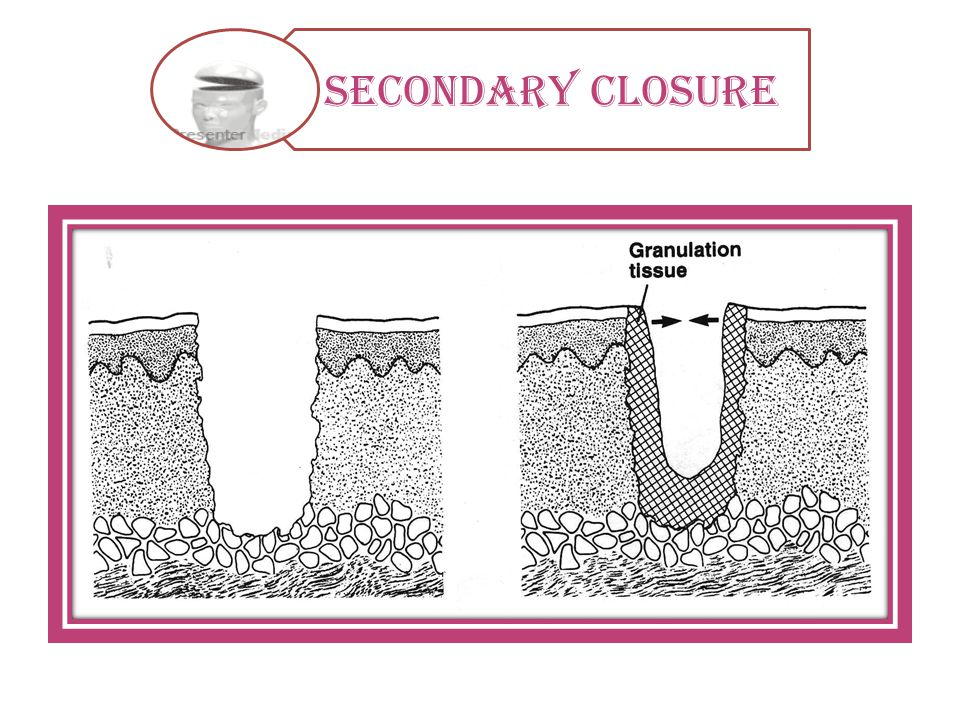Secondary closure