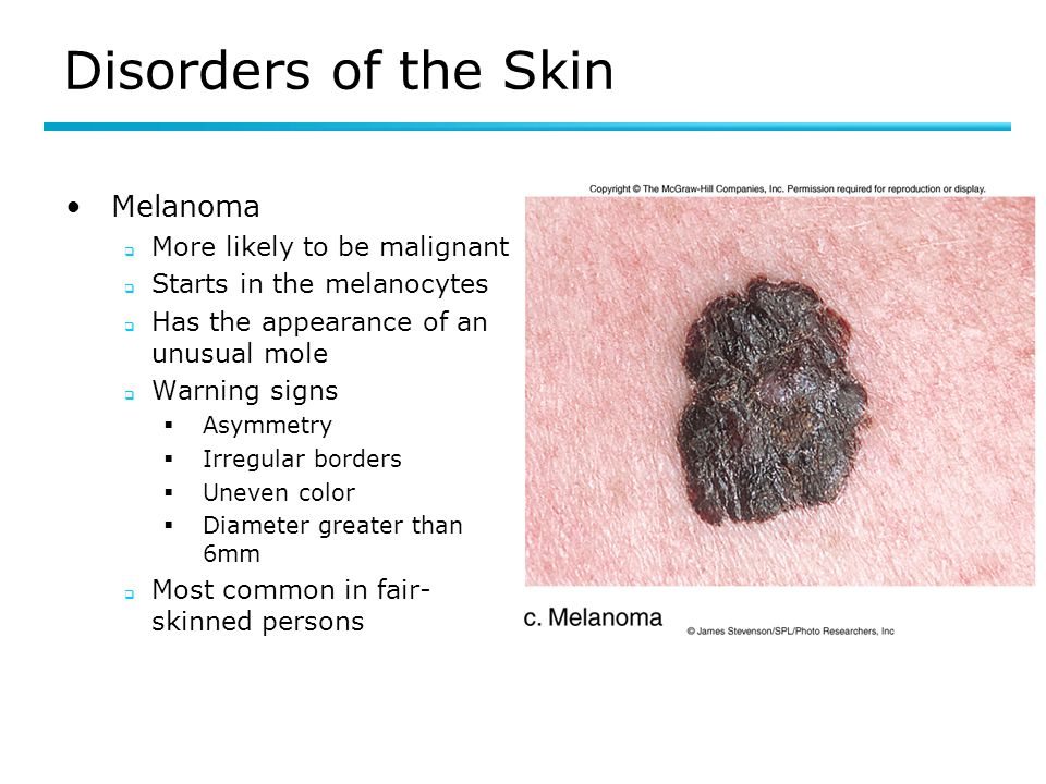 Disorders of the Skin Melanoma  More likely to be malignant  Starts in the melanocytes  Has the appearance of an unusual mole  Warning signs  Asy
