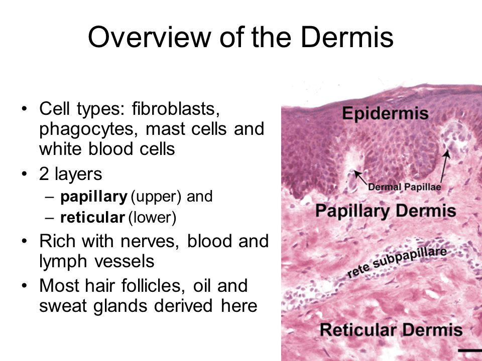 Overview of the Dermis Cell types: fibroblasts, phagocytes, mast cells and white blood cells 2 layers –papillary (upper) and –reticular (lower) Rich with nerves, blood and lymph vessels Most hair follicles, oil and sweat glands derived here