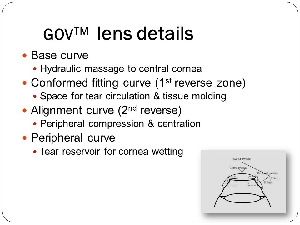GOV TM lens details Base curve Hydraulic massage to central cornea Conformed fitting curve (1 st reverse zone) Space for tear circulation & tissue mol