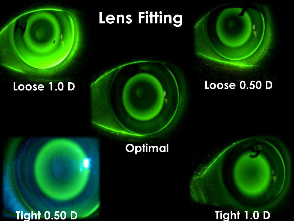 Loose 1.0 D Tight 1.0 D Lens Fitting Tight 0.50 D Loose 0.50 D Optimal