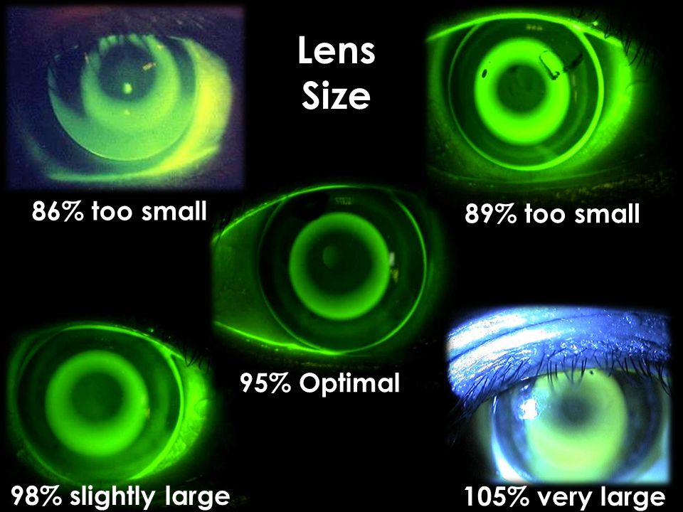 86% too small 98% slightly large Lens Size 89% too small 95% Optimal 105% very large