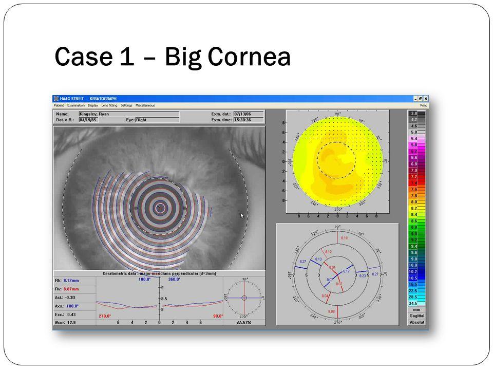 Case 1 – Big Cornea