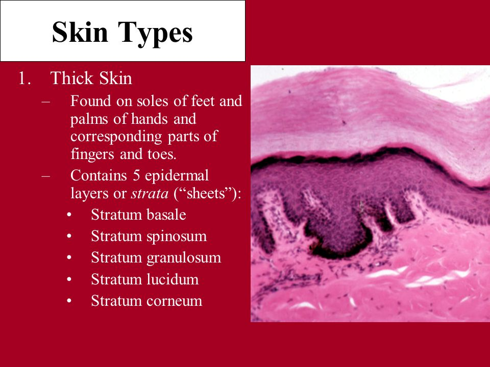 Skin Types 1.Thick Skin –Found on soles of feet and palms of hands and corresponding parts of fingers and toes.