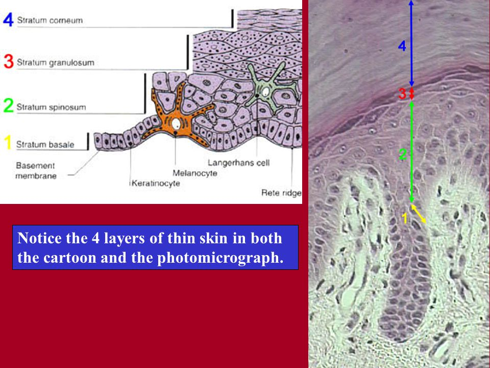 Notice the 4 layers of thin skin in both the cartoon and the photomicrograph.