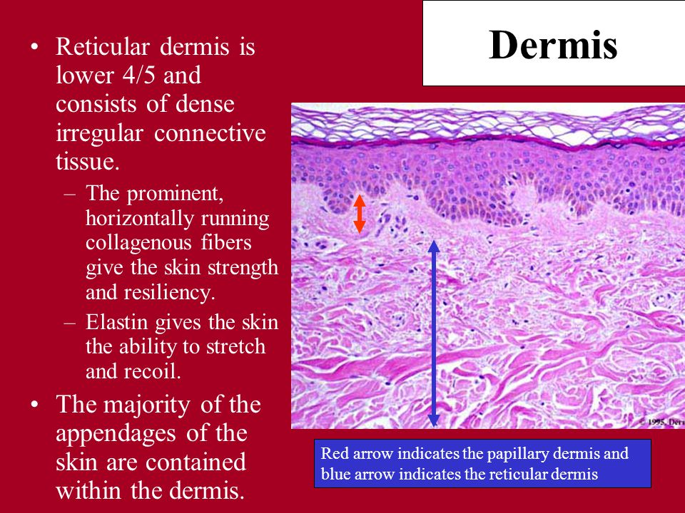 Dermis Reticular dermis is lower 4/5 and consists of dense irregular connective tissue.