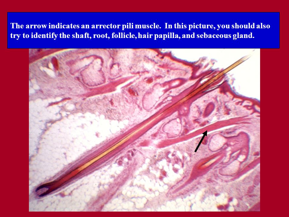 The arrow indicates an arrector pili muscle.