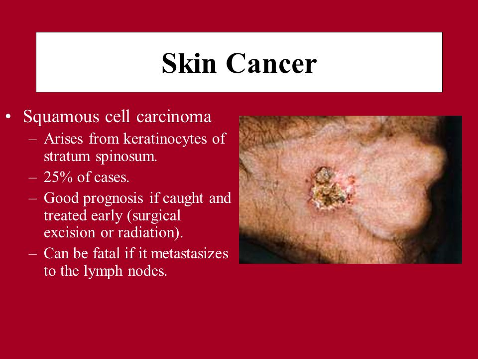 Skin Cancer Squamous cell carcinoma –Arises from keratinocytes of stratum spinosum.