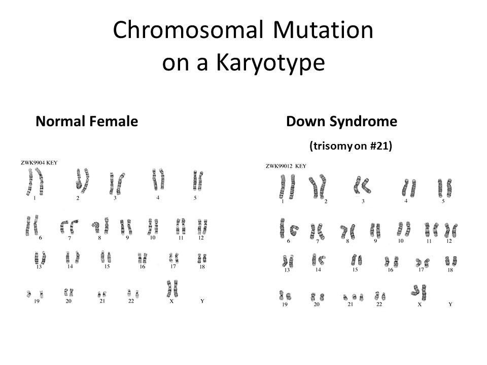 Chromosomal Mutation on a Karyotype Normal Female Down Syndrome (trisomy on #21)