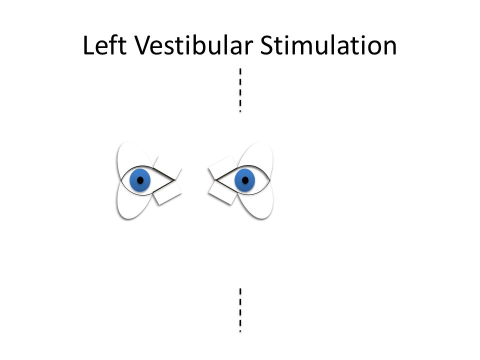 Left Visual Inattention