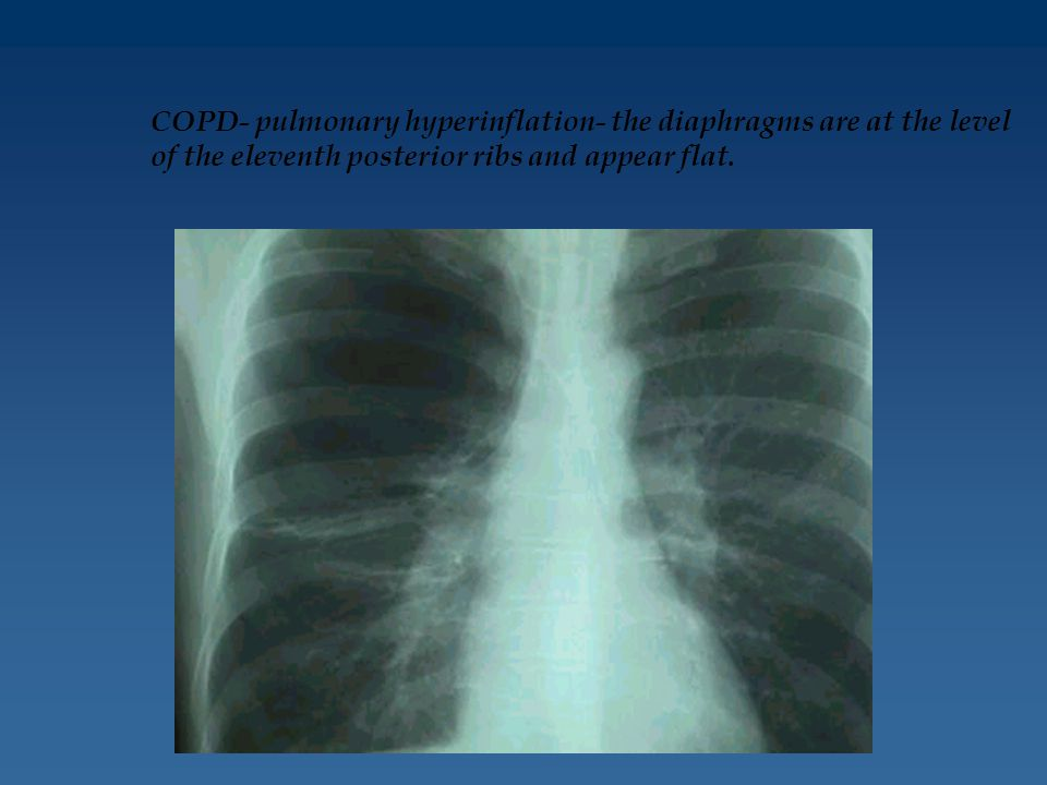 COPD- pulmonary hyperinflation- the diaphragms are at the level of the eleventh posterior ribs and appear flat.