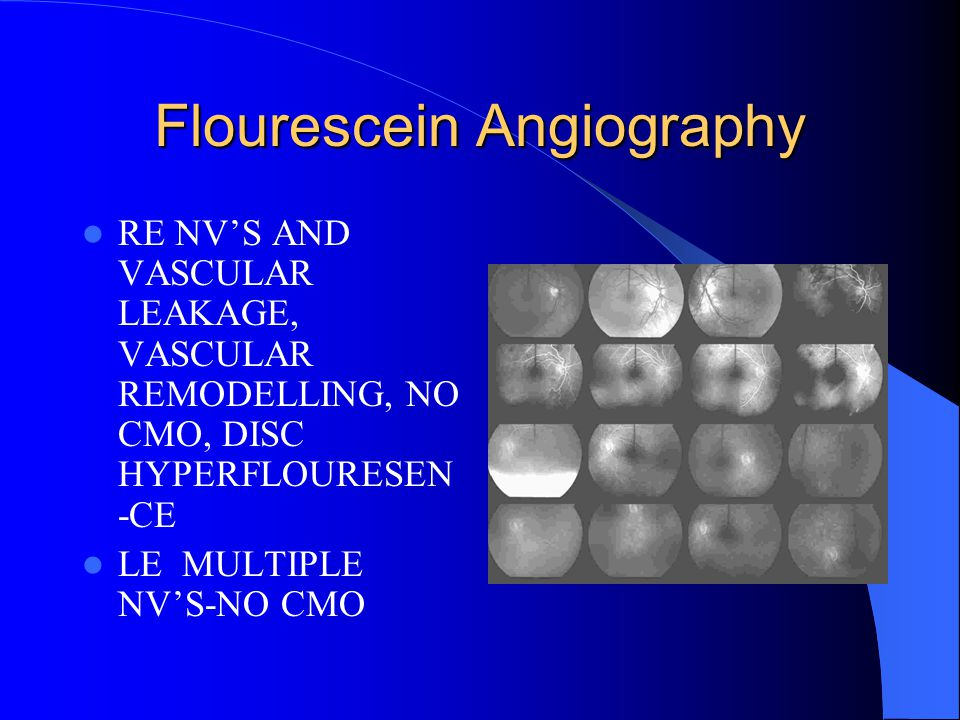 Flourescein Angiography RE NV'S AND VASCULAR LEAKAGE, VASCULAR REMODELLING, NO CMO, DISC HYPERFLOURESEN -CE LE MULTIPLE NV'S-NO CMO