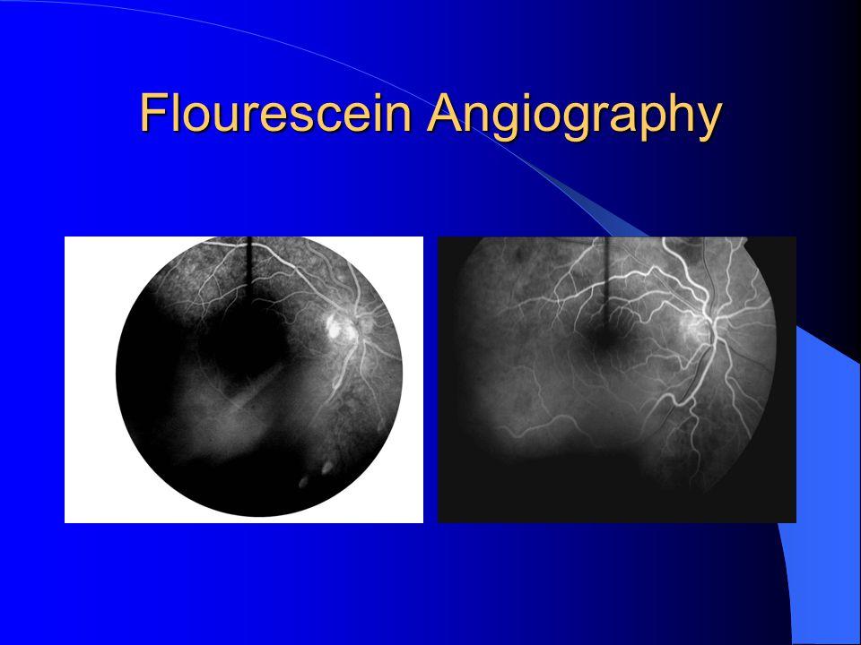 Flourescein Angiography