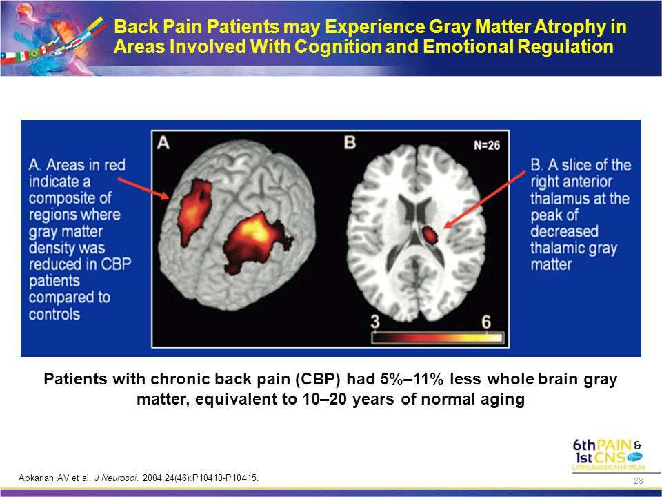 Patients with chronic back pain (CBP) had 5%–11% less whole brain gray matter, equivalent to 10–20 years of normal aging Back Pain Patients may Experi