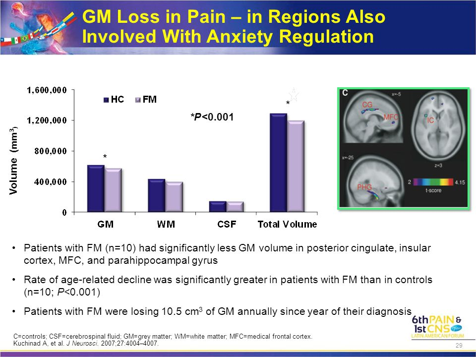 GM Loss in Pain – in Regions Also Involved With Anxiety Regulation *P <0.001 Volume (mm 3 ) Patients with FM (n=10) had significantly less GM volume i