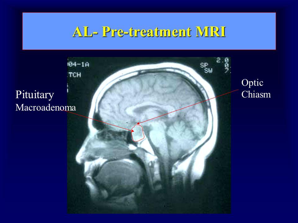 AL- Pre-treatment MRI Pituitary Macroadenoma Optic Chiasm