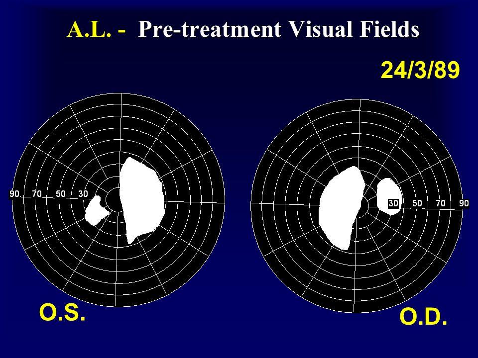 A.L. - Pre-treatment Visual Fields O.S. O.D. 24/3/89