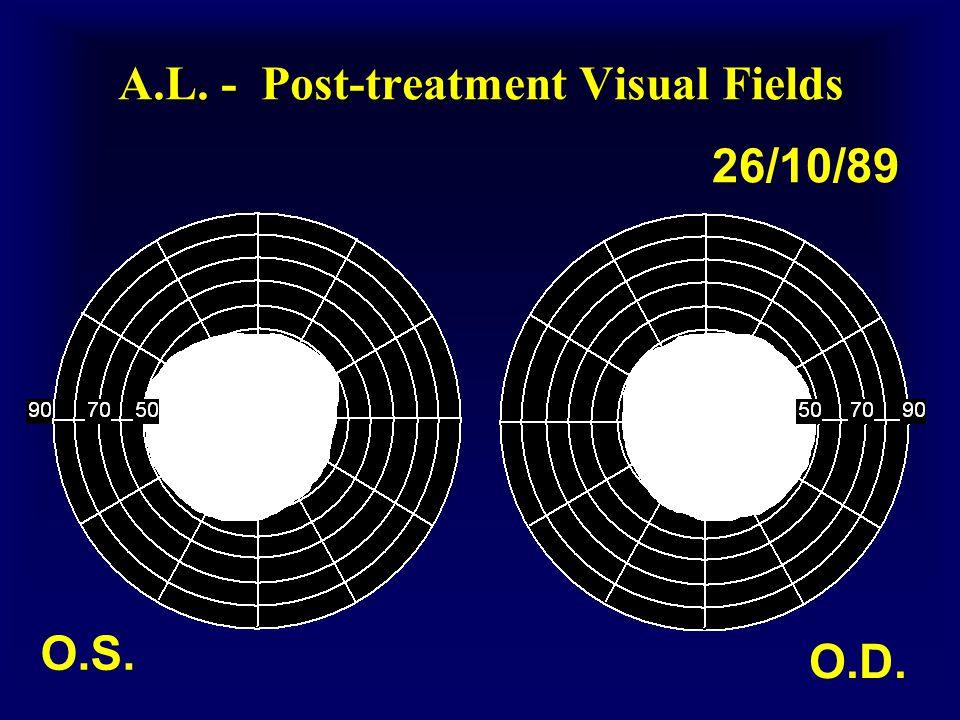 A.L. - Post-treatment Visual Fields O.S. O.D. 26/10/89