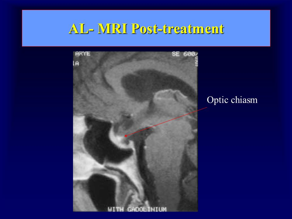 AL- MRI Post-treatment Optic chiasm