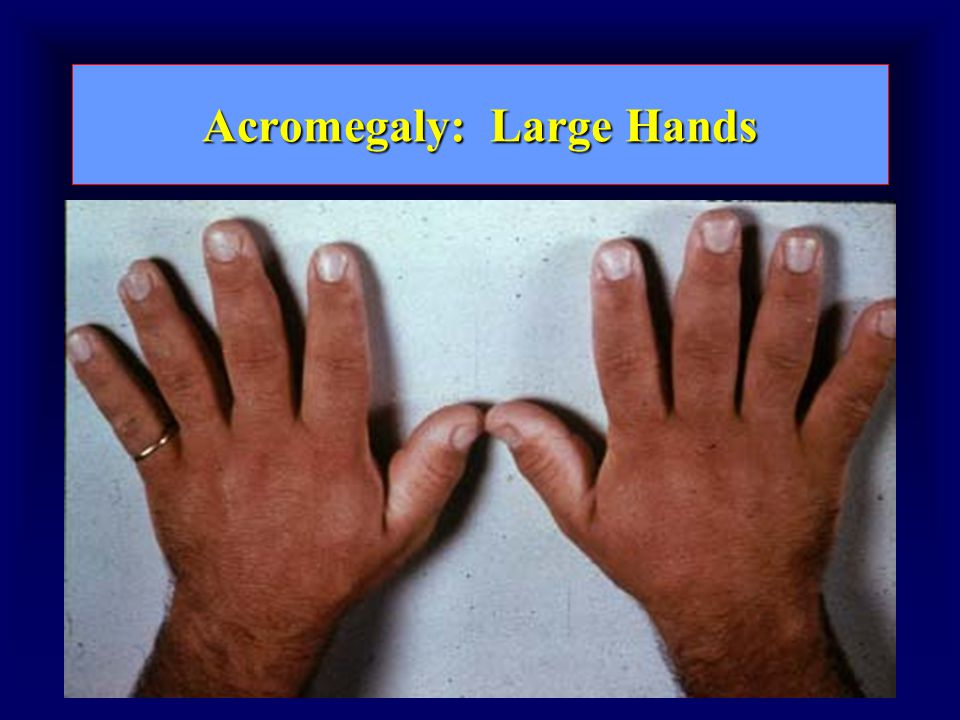 Acromegaly: Large Hands