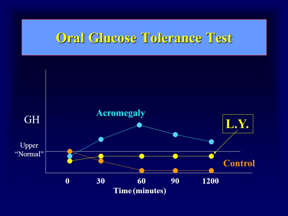 Oral Glucose Tolerance Test 03060120090 Time (minutes) GH Upper Normal L.Y. Acromegaly Control