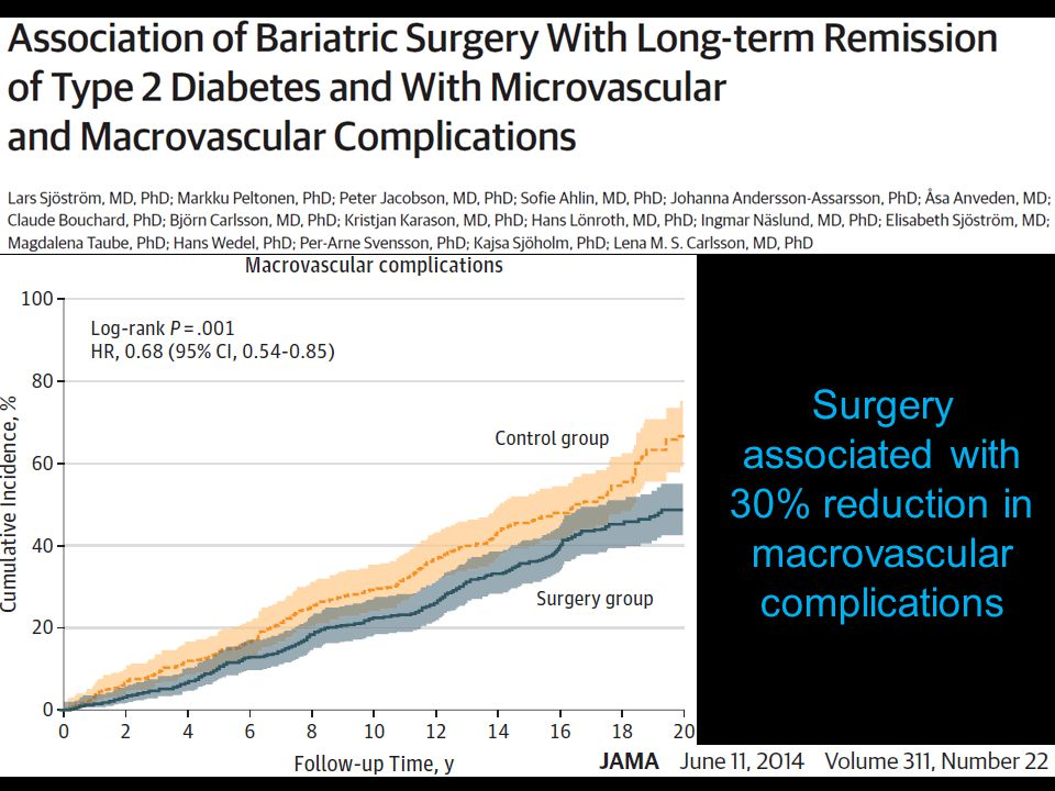 Surgery associated with 30% reduction in macrovascular complications