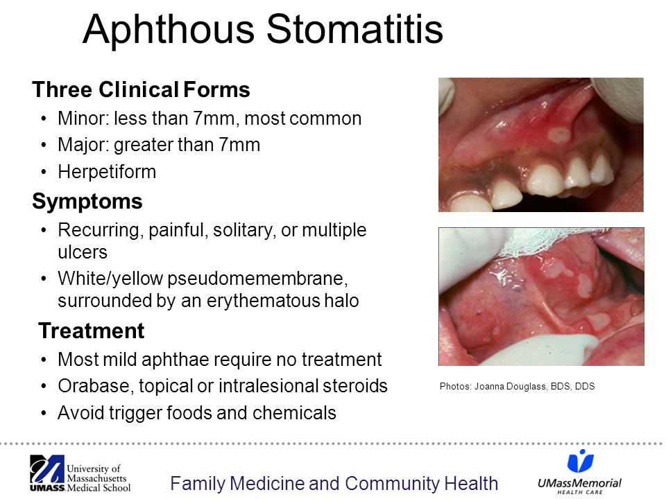 Aphthous Stomatitis Three Clinical Forms Minor: less than 7mm, most common Major: greater than 7mm Herpetiform Symptoms Recurring, painful, solitary, or multiple ulcers White/yellow pseudomemembrane, surrounded by an erythematous halo Treatment Most mild aphthae require no treatment Orabase, topical or intralesional steroids Avoid trigger foods and chemicals Photos: Joanna Douglass, BDS, DDS 30