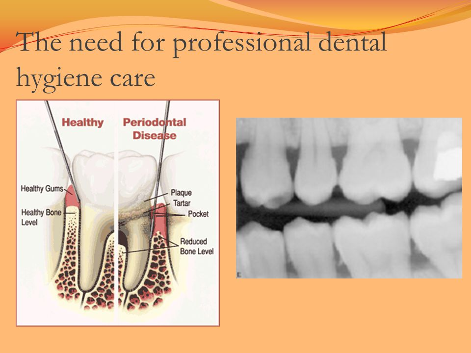 The need for professional dental hygiene care
