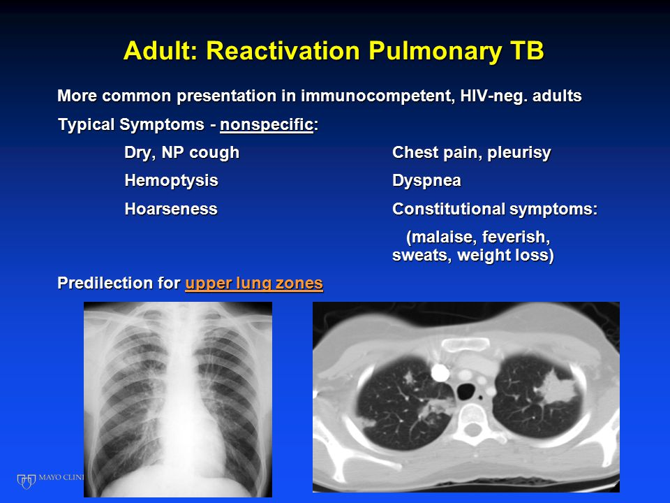 Adult: Reactivation Pulmonary TB More common presentation in immunocompetent, HIV-neg.