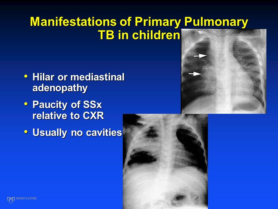 Manifestations of Primary Pulmonary TB in children Hilar or mediastinal adenopathy Hilar or mediastinal adenopathy Paucity of SSx relative to CXR Pauc