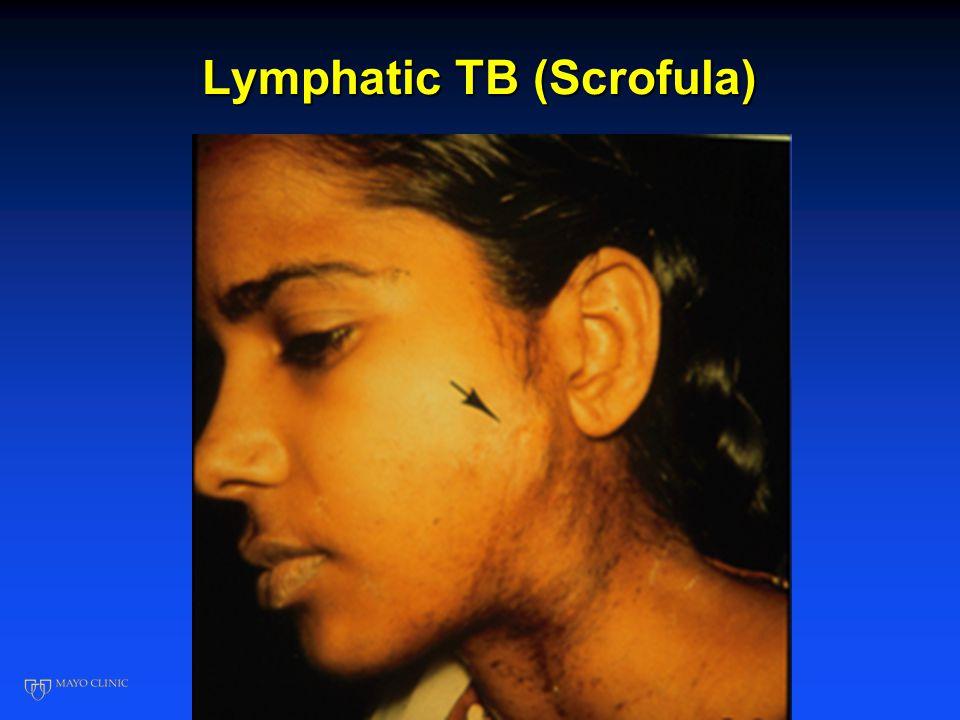 Lymphatic TB (Scrofula)