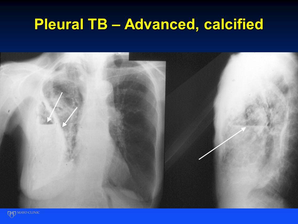Pleural TB – Advanced, calcified