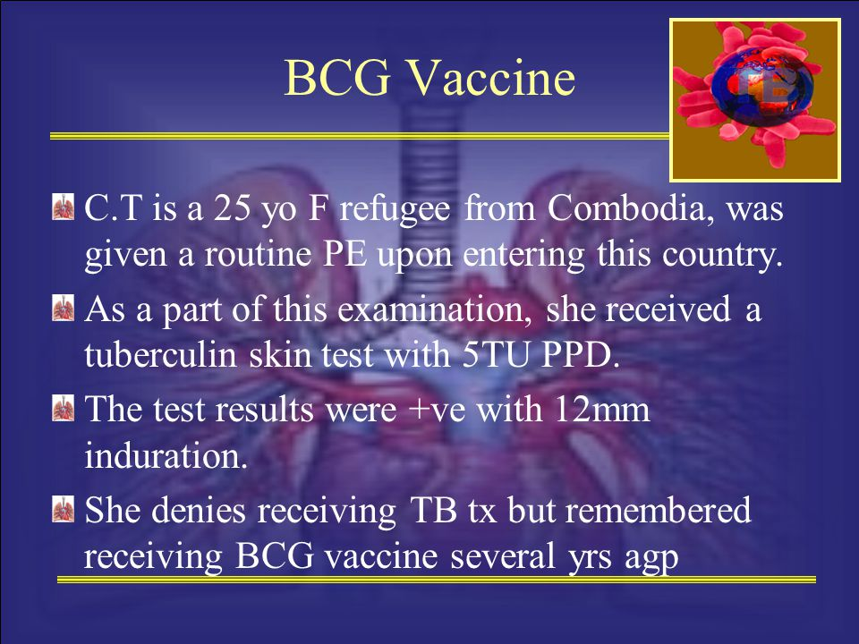 BCG Vaccine C.T is a 25 yo F refugee from Combodia, was given a routine PE upon entering this country. As a part of this examination, she received a t