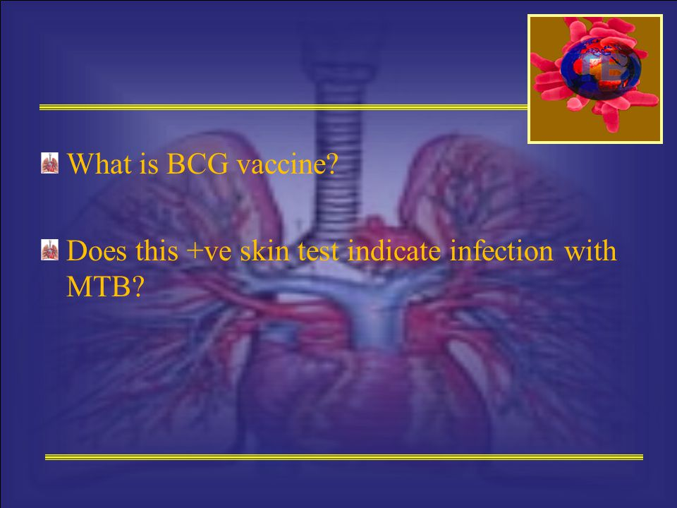What is BCG vaccine? Does this +ve skin test indicate infection with MTB?