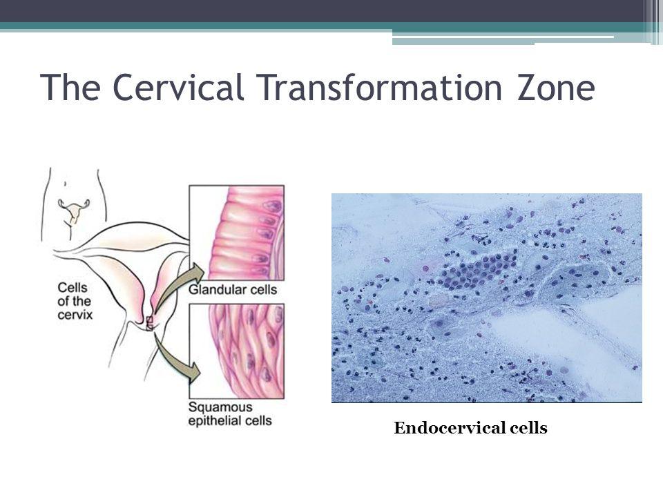 Endocervical cells