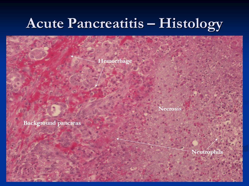 Acute Pancreatitis – Histology Neutrophils Necrosis Background pancreas Hemorrhage