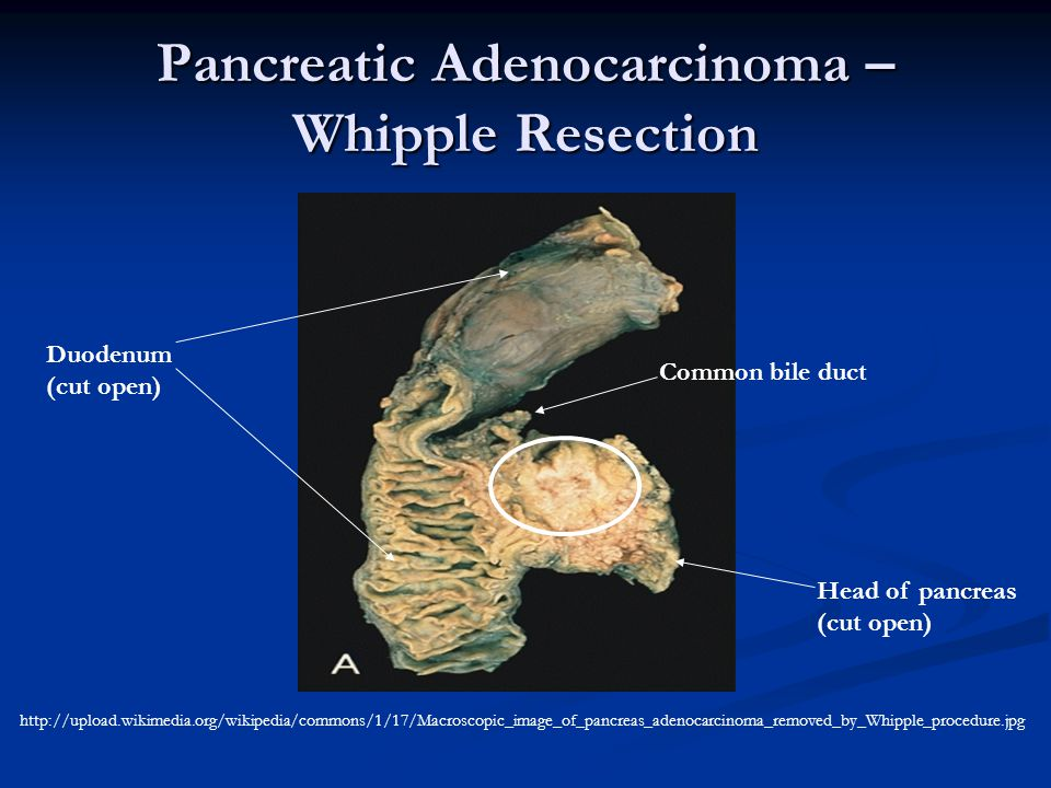 Pancreatic Adenocarcinoma – Whipple Resection http://upload.wikimedia.org/wikipedia/commons/1/17/Macroscopic_image_of_pancreas_adenocarcinoma_removed_