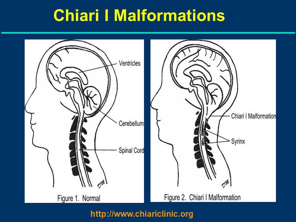 Chiari I Malformations http://www.chiariclinic.org
