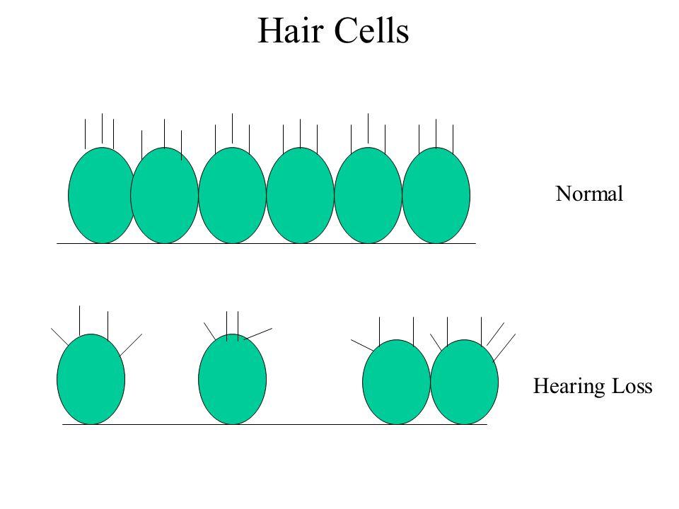 Normal Hearing Loss Hair Cells