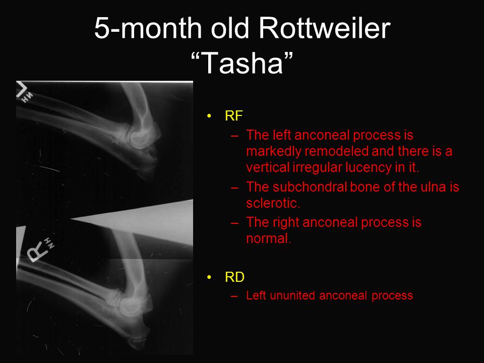 5-month old Rottweiler Tasha RF –The left anconeal process is markedly remodeled and there is a vertical irregular lucency in it.