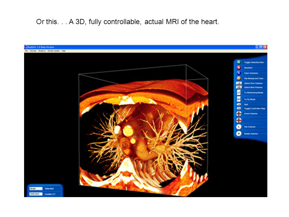 Or this... A 3D, fully controllable, actual MRI of the heart.