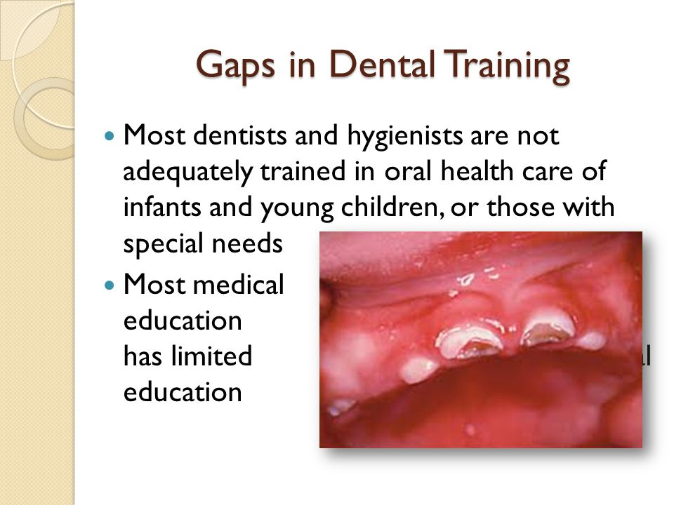 Gaps in Dental Training Most dentists and hygienists are not adequately trained in oral health care of infants and young children, or those with speci