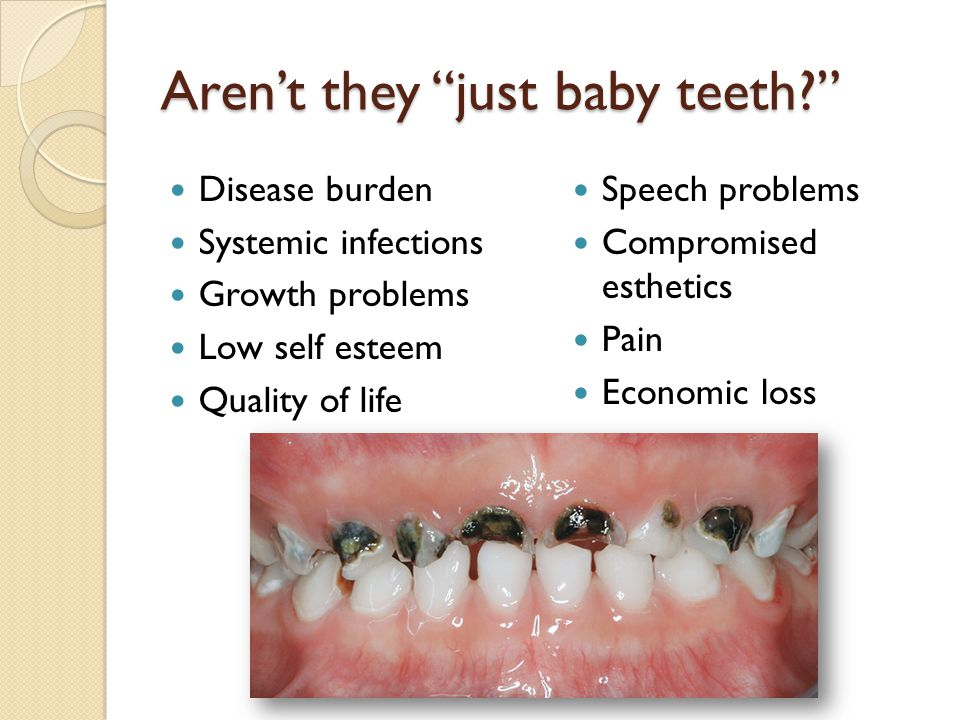 "Aren't they ""just baby teeth?"" Disease burden Systemic infections Growth problems Low self esteem Quality of life Speech problems Compromised esthetic"