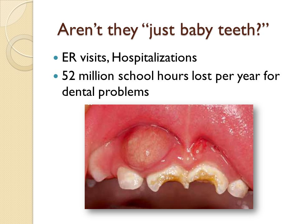 Early Childhood Caries A transmissible infection caused by Streptococcus Mutans Diet dependent – fermentable carbohydrates with frequent exposure Occurs on erupted susceptible teeth Causes cavities to develop over time ECC affected children are at higher risk for decay as adolescents and adults