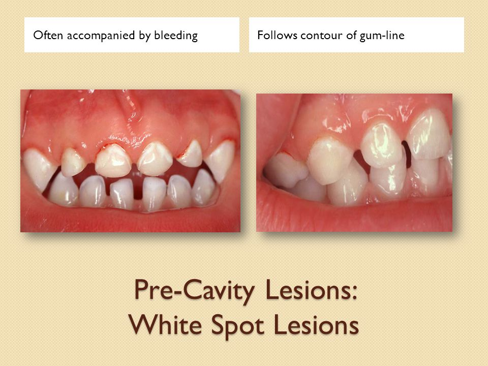 Pre-Cavity Lesions: White Spot Lesions Often accompanied by bleedingFollows contour of gum-line