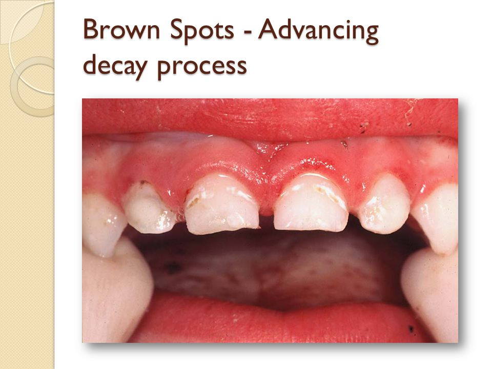 Brown Spots - Advancing decay process